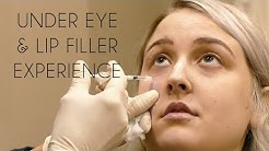 Juvederm Cost Vollure