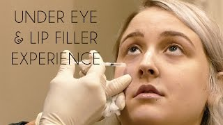 Under Eye Filler Experience & Footage   Before/After, Cost, Pain, Bruising & My Lips