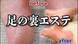 撮影協力:足と靴の研究所 https://www.ashi-kutsu-soudan.co.jp/general/salon/ 恭一郎グッズ→https://muuu.com/videos/a97f29590e1d0460 サブ ...