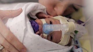 La impresionante historia de amor de una madre y su bebé que lucha por sobrevivir
