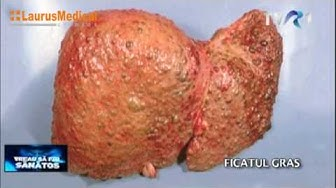 Ficatul gras (steatoza hepatica) - cauze, diagnosticare, complicatii ale bolii