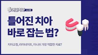 [틀어진 치아 4편] 틀어진 치아 바로 잡는 치료법?|…