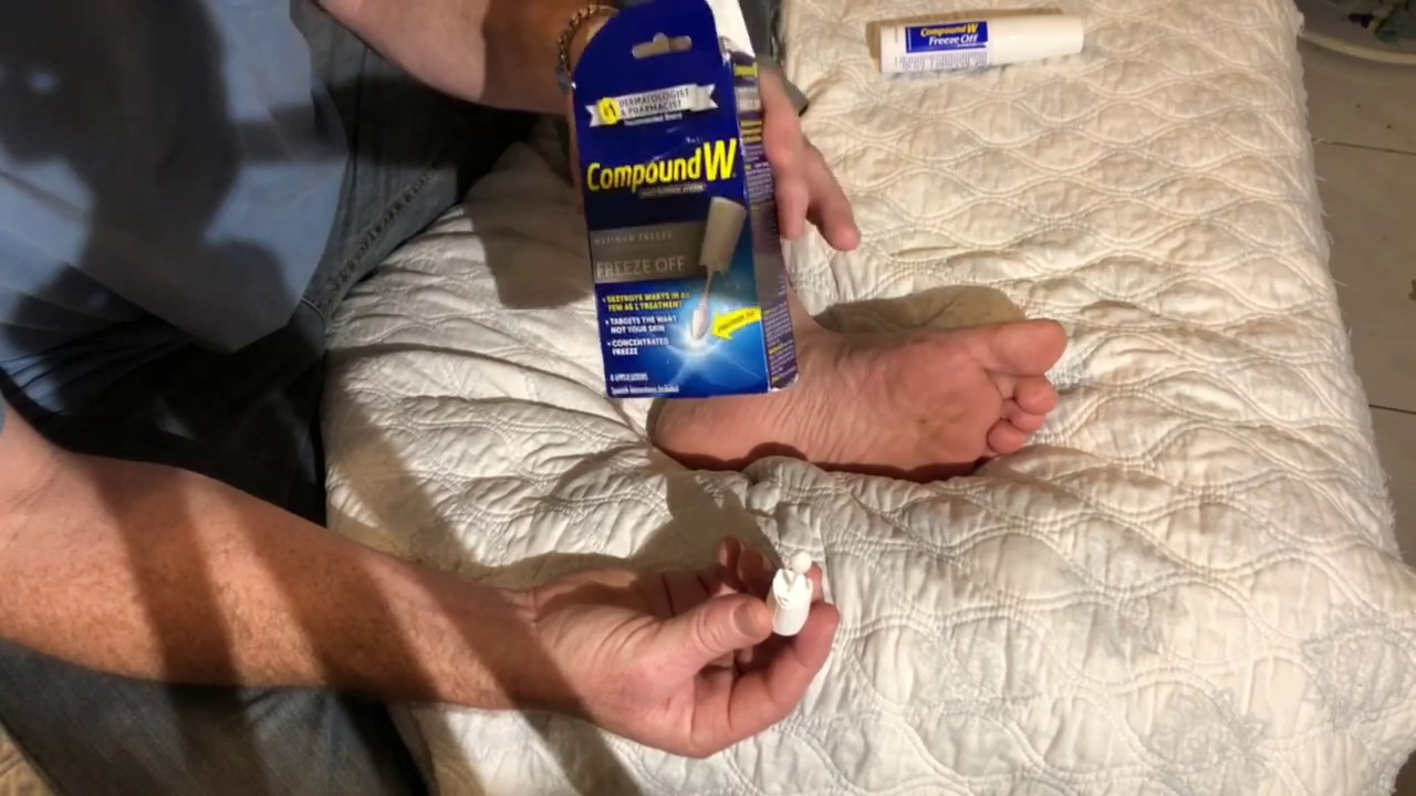 How To Remove A Plantar Wart At Home Compound W Freeze Off Wart Removal System Used On My Foot Youtube
