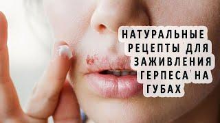 Натуральные рецепты для заживления герпеса на губах