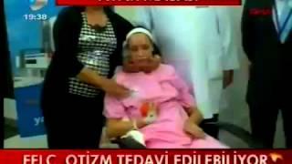 KANAL D ANA HABER / REFLEKSOLOJİ / ESAT BAŞARAN ve HALİL TABUR