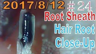 Hair Root / Root Sheath Close Up #24【Plucking Root Sheath】