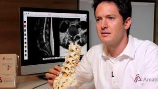 Dr. Marcelo: Infiltrações da coluna