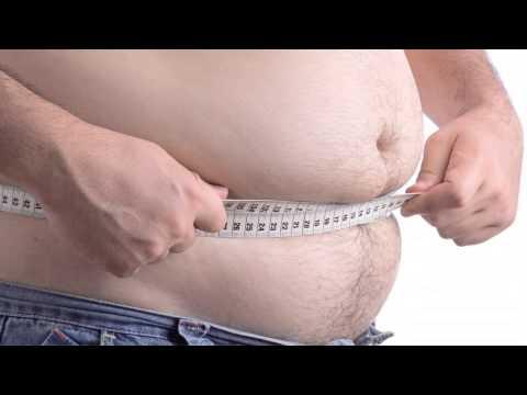 Healthier U-Obesity