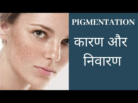 pigmentation कारण और निवारण by Dr. Manoj Das (AROMATHERAPIST)