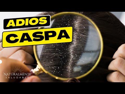 Remedios caseros para la caspa con limon