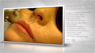 Almai Laser - Depilación Médica Láser Definitiva Thumbnail