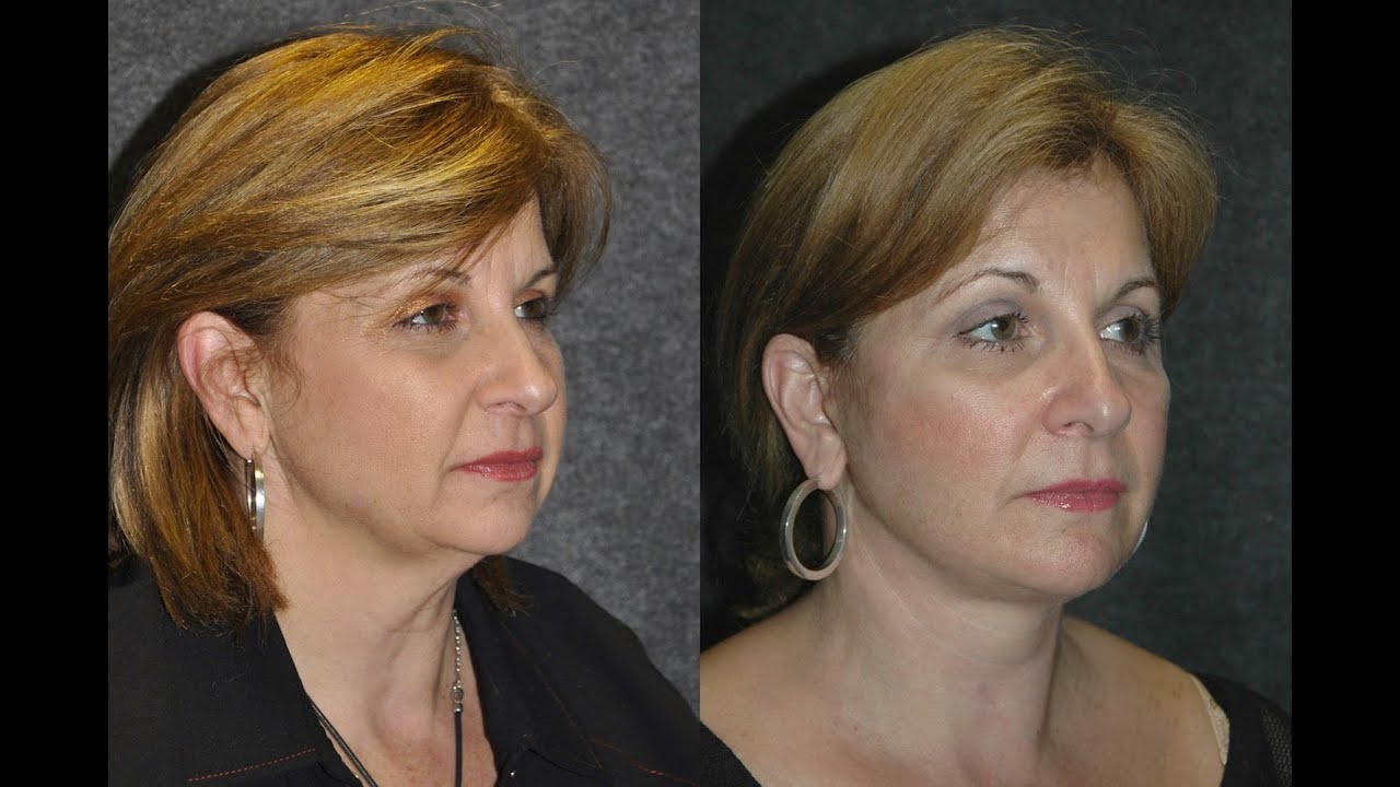 55 Year Woman 10 Days After Facelift Recovery Before And
