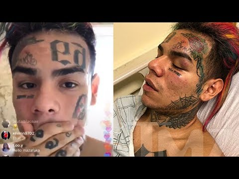 6ix9ine Finally Speaks after being Hospitalized & Robbed