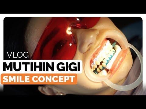 Pengalaman Bleaching Gigi di Smile Concept, Klinik Gigi di Jakarta | Bagaimana Cara Memutihkan Gigi?