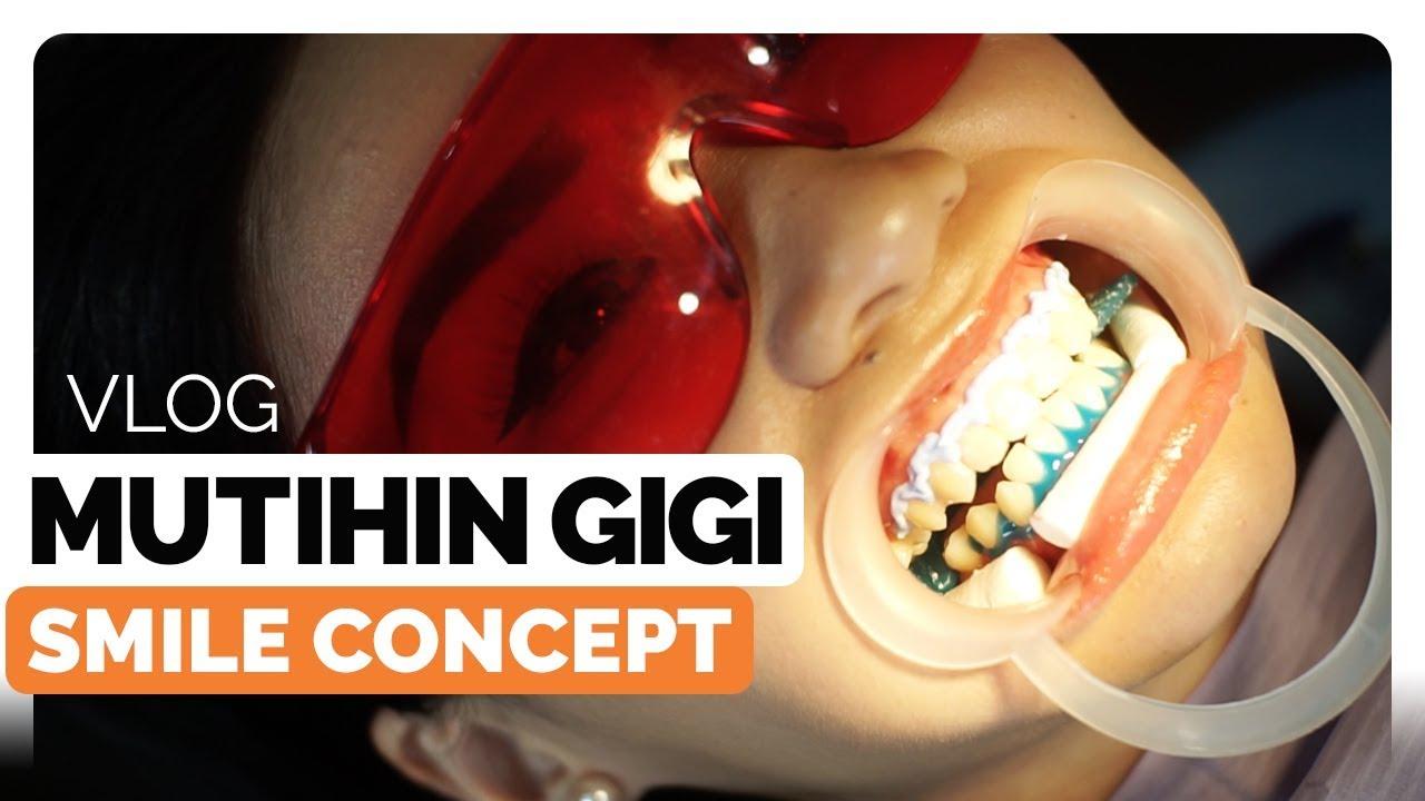 Pengalaman Bleaching Gigi Di Smile Concept Klinik Gigi Di Jakarta