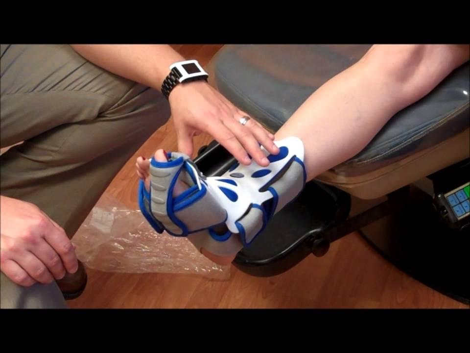 How Night Splints Help In Heel Pain Relief Youtube