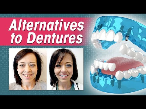 Alternative to Dentures: Comparing Dentures, Overdentures, All-on-4 and 3 on 6™