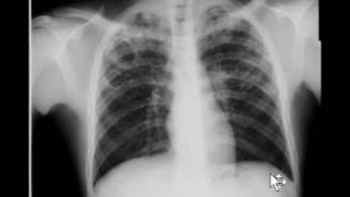 Chest x-ray - Tuberculosis