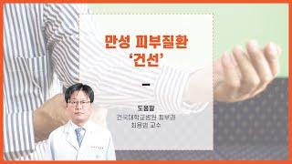 만성피부질환 건선_건국대병원 피부과 최용범 교수