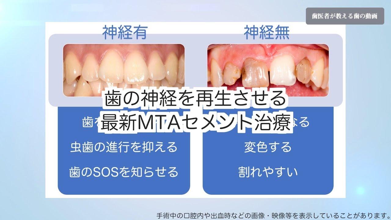 時 痛い 食事 の が 歯