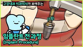 임플란트 과정, 임플란트수술 한국인이 좋아하는 속도로 …