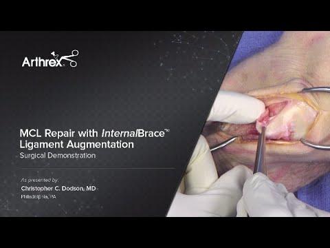 MCL Repair With InternalBrace™ Ligament Augmentation