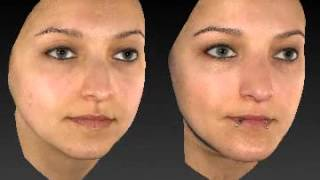 Rhinoplasty 3D Before & After 1