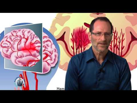 Stroke and how it affects the brain