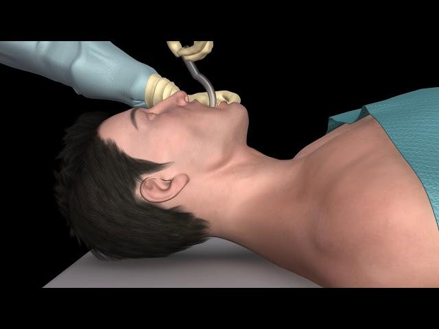 Oral Airway Insertion