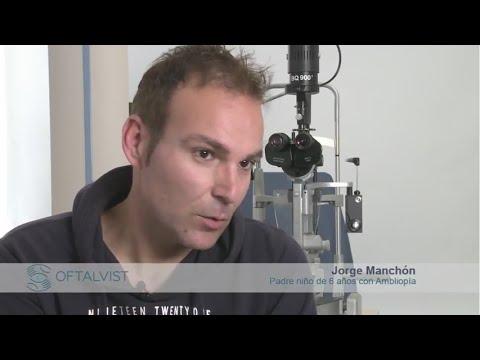 Imagen de Paciente ambliopía, Oftalvist - Terapia Visual - Jorge Manchón