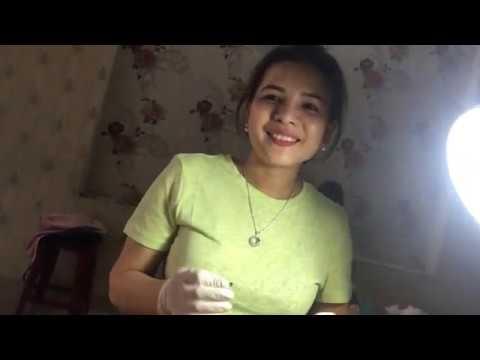 Acne Inflammation Younger Sister 23 Years Old Da Nang  Acne Treatment Hương