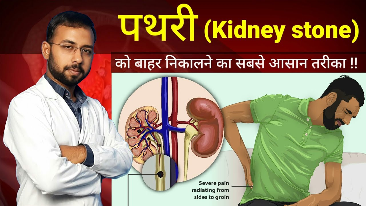Download Pathri ko bahar nikalne ka Aasan tarika   pathri ka ilaj   kidney stone symptoms cause treatment