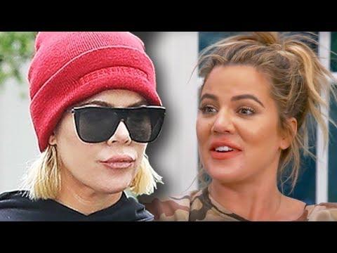 Khloe Kardashian Reacts To Lip Fillers Backlash