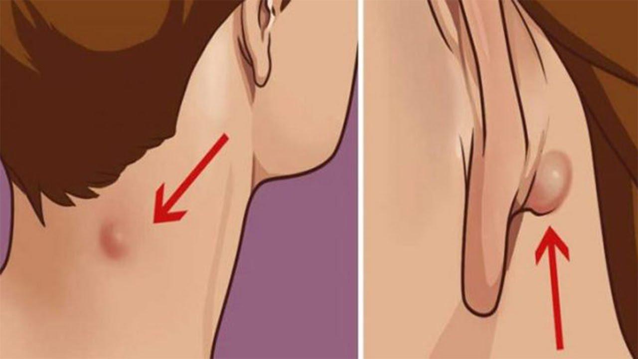 Los dolores crónicos en la espalda y el embarazo