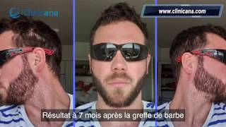 Greffe de barbe de Monsieur Cassou