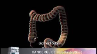 cancerul de colon si rect)