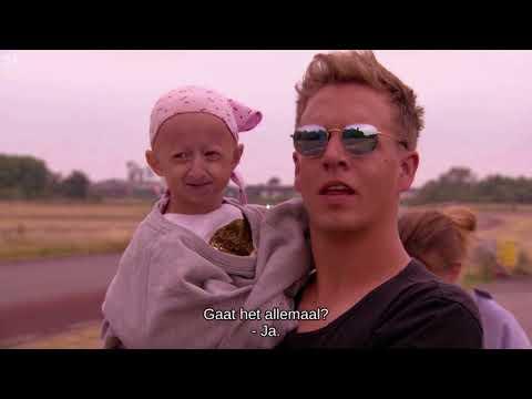 Anthony Kumpen met Karen Damen & James Cook voor Progeria