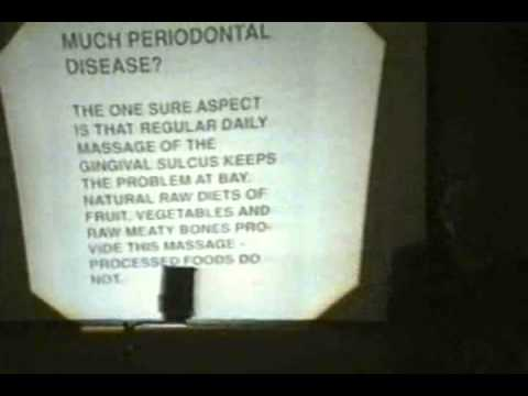 Pandemic of Periodontal Disease: A malodorous condition - August 1992