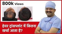 What Is The Cost Of Hair Transplant In India (हेयर ट्रांसप्लांट में कितना खर्चा आता है)   (In HINDI)
