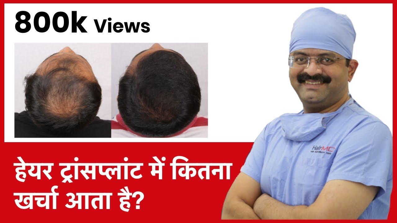 Download What Is The Cost Of Hair Transplant In India (हेयर ट्रांसप्लांट में कितना खर्चा आता है) | (In HINDI)