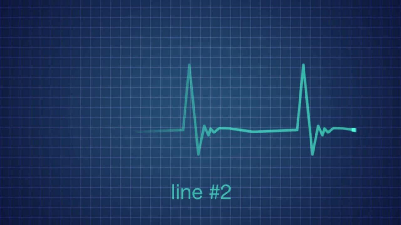 ekg heart monitor flatline after effects templates