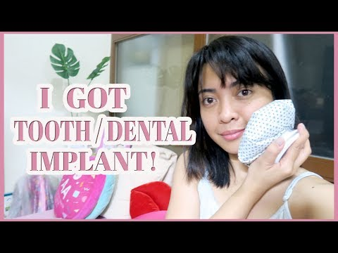 I GOT TOOTH / DENTAL IMPLANT! | Gen-zel Habab