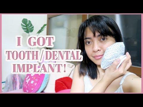 I GOT TOOTH / DENTAL IMPLANT! | Gen-zel Habab