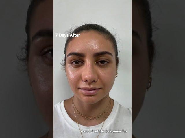 Celebrity nose