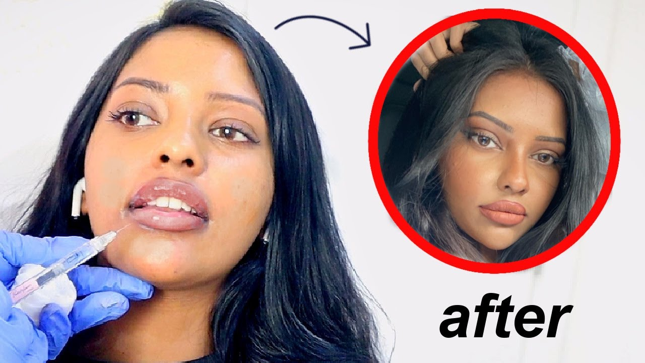 how a little filler changed my WHOLE face (fixing botched lips)