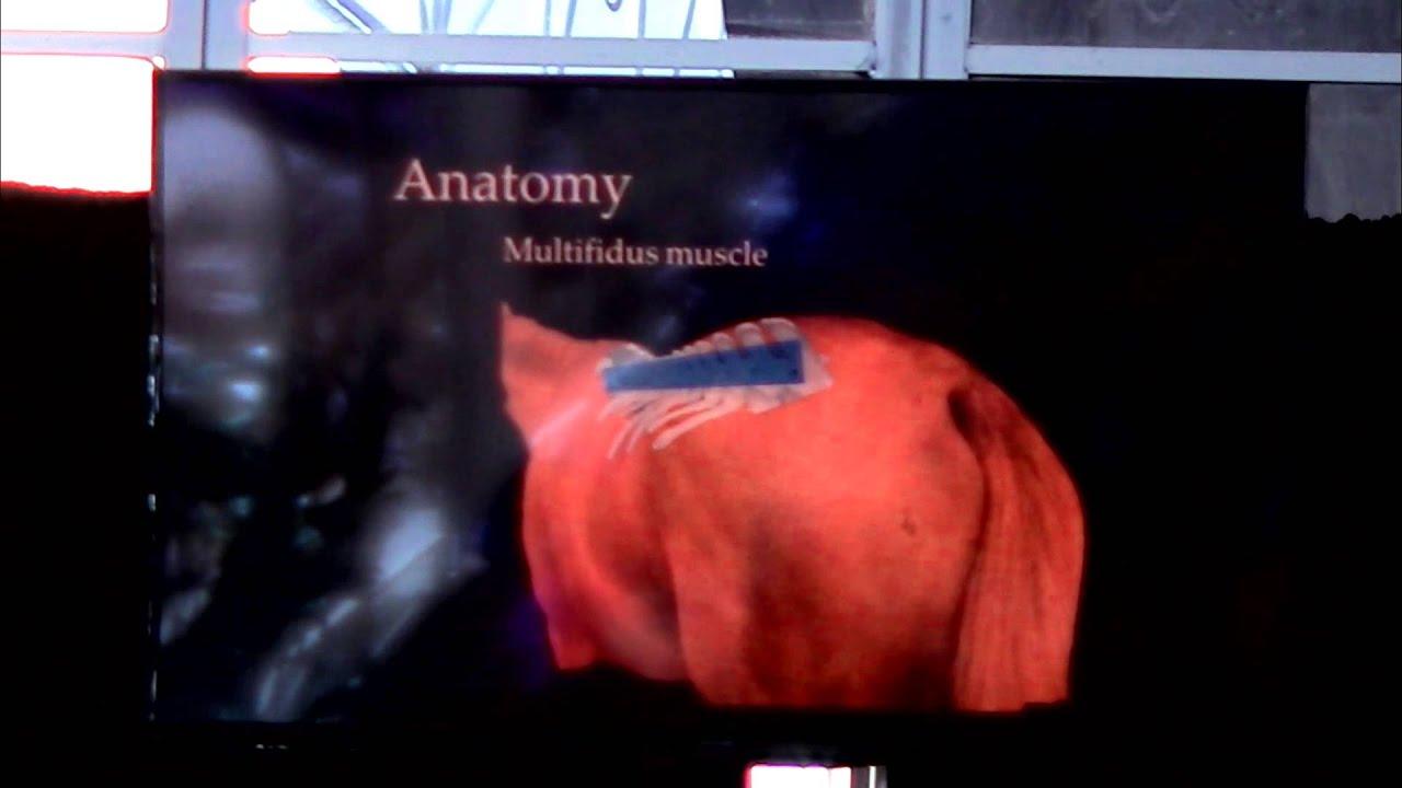 Anatomy Of The Horses Back Where Back Injuries Start Youtube