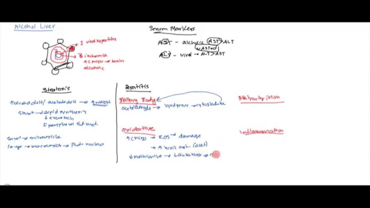 Alocoholic liver pathology and pathophysiology for usmle step 1 alocoholic liver pathology and pathophysiology for usmle step 1 ccuart Images