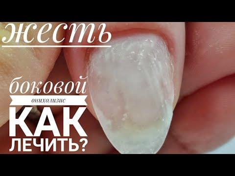 Онихолизис/Боковой онихолизис/Травматическое отслоение ногтей/Как лечить онихолизис/Шулунова Дарья
