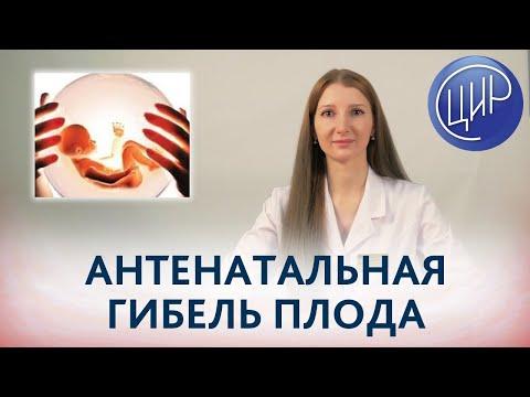 Антенатальная гибель плода: причины, обследование и подготовка к следующей беременности.