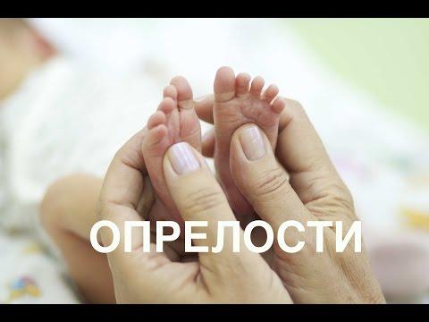 Лечение опрелостей у новорожденных II ОВП